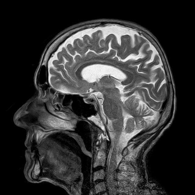 brein, hersenen en stress StressCentrum.nl.jpg